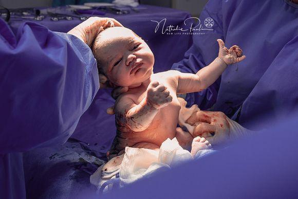 Nascimento da Miah - Parto Cesárea