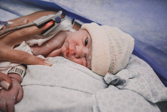 Nascimento da Aurora